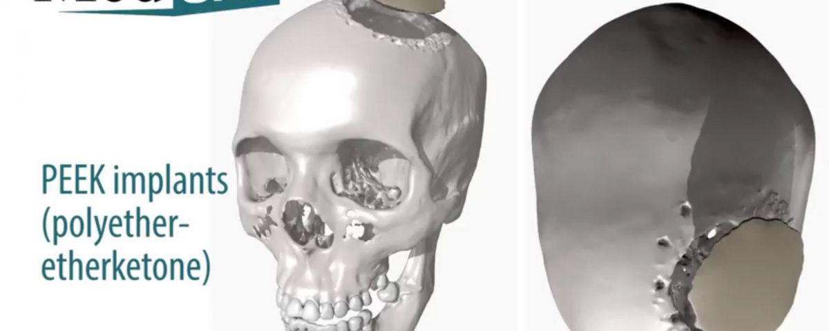 Patient-Specific PEEK Implants (PSI) are comparable to cortical bone and designed from patient scan data to create a customized, patient-specific solution. Synthetic cranioplasties are commonly used as an alternative to bone flaps to fill a defect or void in the cranial skeleton. Neurosurgeons have a wide selection of cranioplasty products to choose from, including PEEK polymer, PMMA, Acrylic, and titanium mesh. New products are gradually coming to market, but few boast the clinical specifications of customized PEEK materials. Many doctors prefer PEEK because of the material durability combined with the ease of use in the OR. For a patient-matched cranioplasty, the customizable nature of PEEK lends itself to manufacture, ship, and autoclave well at a competitive price point. Patient-matched implants benefit from many of the same advantages of Digital Surgery Planning (for example, CMF reconstruction or trauma) in that the advanced preparation can reduce operating room time, reduce risk, and improve surgical outcomes.